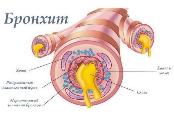 Можно ли при бронхите греть грудную клетку в домашних условиях