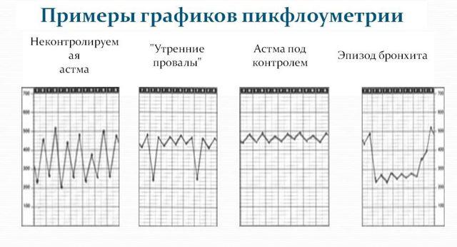 Пикфлоуметрия: что это, алгоритм проведения и показатели нормы