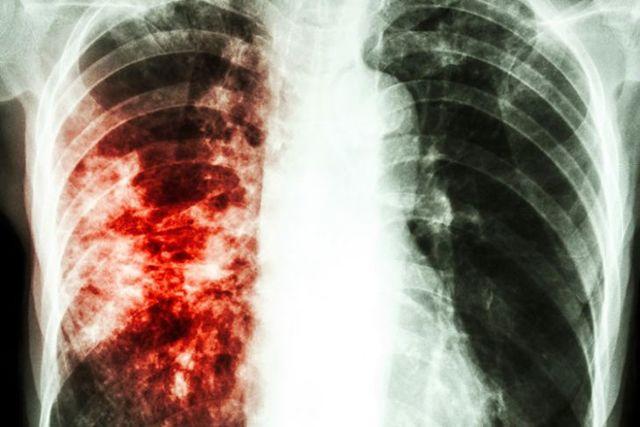Лечение туберкулеза народными средствами: самые эффективные для взрослых