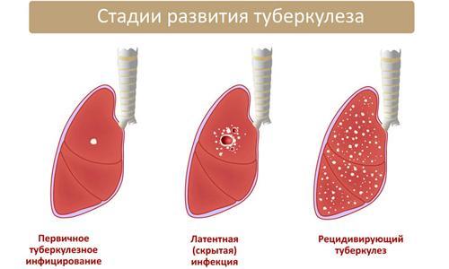 ШЛУ и МЛУ туберкулез: что это значит и способы лечения