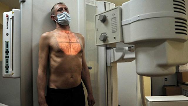 Закон 77 ФЗ о предупреждении распространения туберкулеза