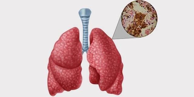 Лечение туберкулеза у взрослых: как и чем лечить
