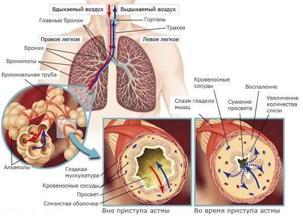 Какая мокрота при бронхиальной астме: виды выделений