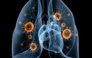 Подозрение на туберкулез - что делать, как диагностируют туберкулёз