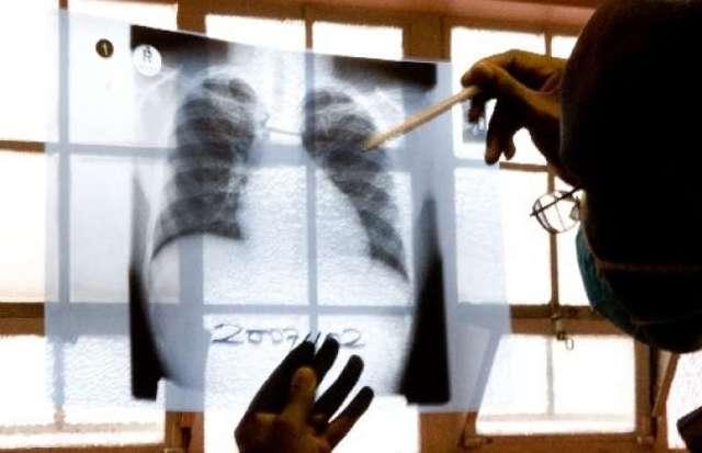 Сало при туберкулезе - народные рецепты и их польза