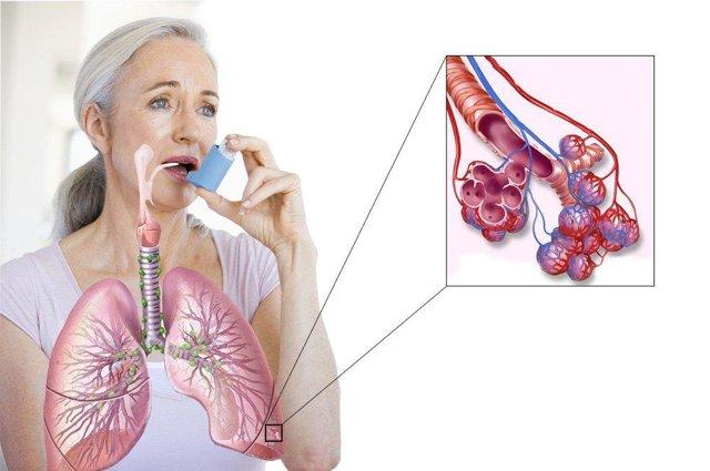 Астматический кашель: разновидности и профилактика приступов