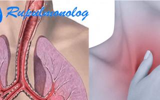 Трахеидный кашель: причины возникновения и принципы лечения