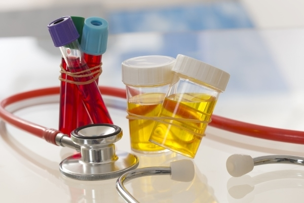 Туберкулез и сахарный диабет: особенности лечения, диета