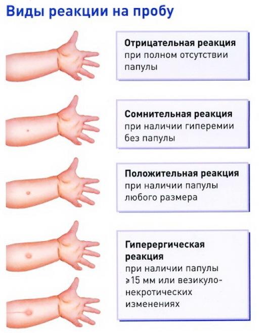 Манту и алкоголь - вред никотина и алкоголя на прививку