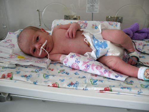 Правосторонняя пневмония у ребенка: причины развития и лечение