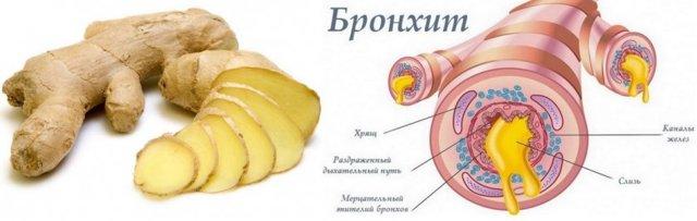 Имбирь при бронхите у взрослых: рецепт и полезная информации