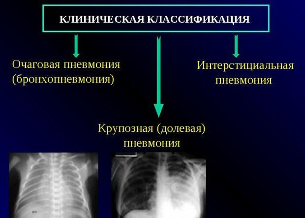 Двухсторонняя пневмония: прогноз и продолжительность лечения