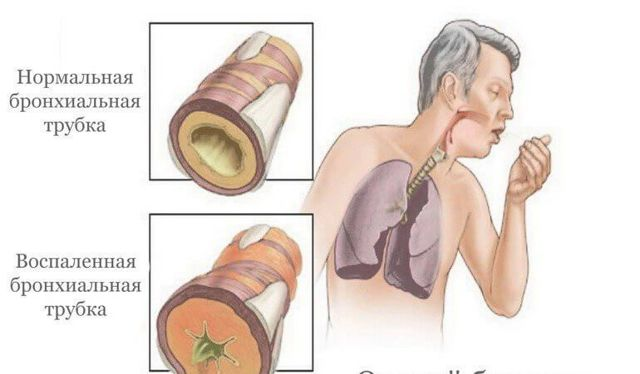 Постоянный кашель и покашливание у взрослого: причины и лечение