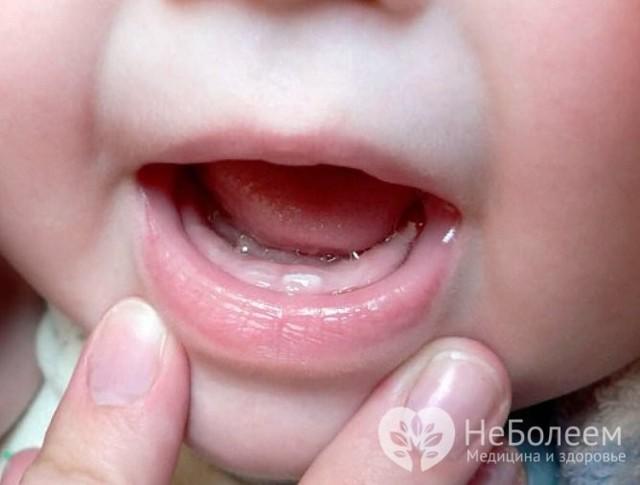 Сироп от кашля для детей до 1 года: показания к применению