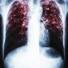 Признаки туберкулеза у детей и первые симптомы
