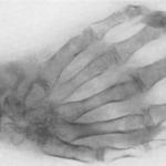 Туберкулез костей и суставов: симптомы, первые признаки, как передается