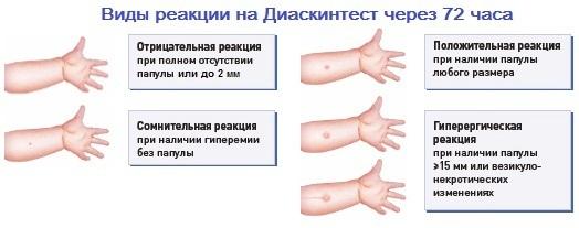 Аллергия на Диаскинтест или гиперергическая реакция на Диаскинтест: что значит этот результат