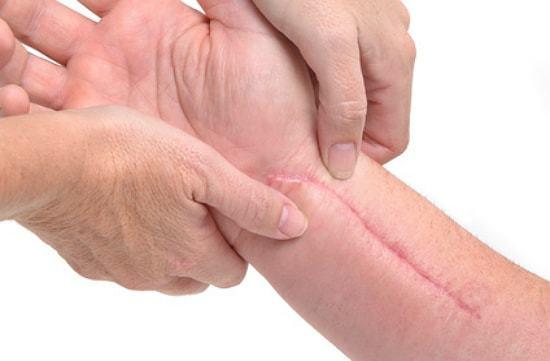 Осложнения после БЦЖ: остит, абсцесс и другие и последствия