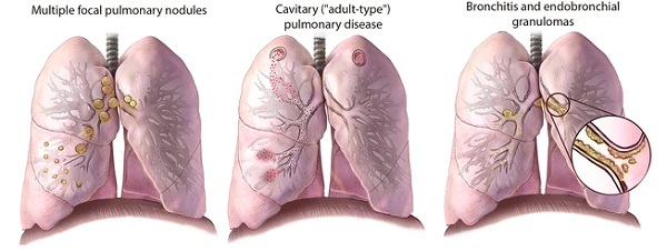 Очаговый туберкулез легких: заразен или нет, способы лечения