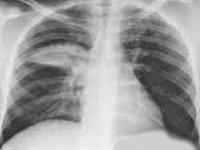 Хламидия пневмония: профилактика, симптомы и лечение у взрослых
