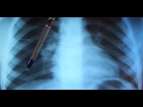 Очаг Гона в легких: что это, характеристики очагов. заразно или нет