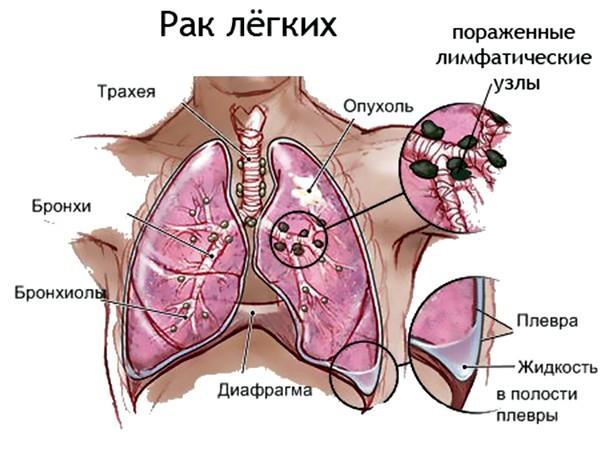 Средства от кашля при онкологии: симптомы и лечение причины