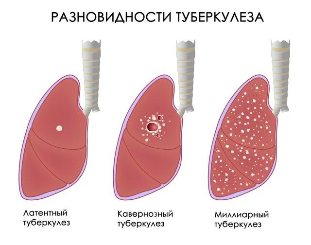 Инфильтративный туберкулез в фазе распада: что это такое, заразен он или нет