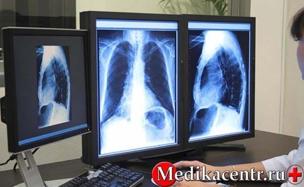Анализ крови на туберкулез у взрослых - как называется тест по крови