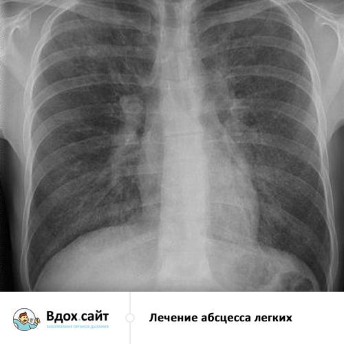 Абсцесс легкого: рентгенологические признаки на рентгенограмме