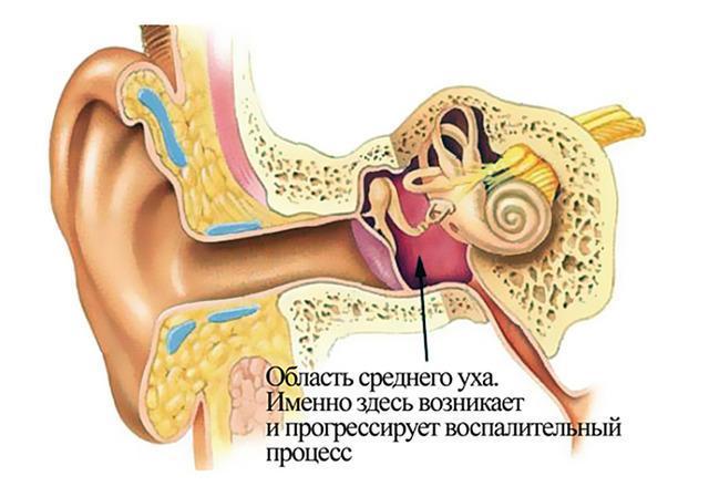 Симптомы и лечение хронического отита