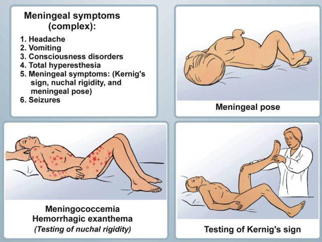 Туберкулезный менингит или менингоэнцефалит: что это такое, симптомы и как передается