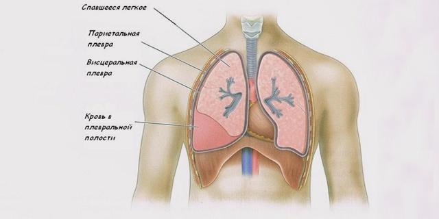 При бронхите болит грудная клетка: причины и лечение