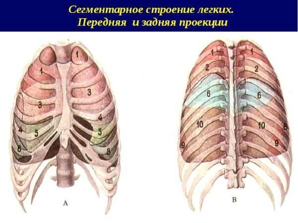 Сегментарная левосторонняя и правосторонняя пневмония у детей