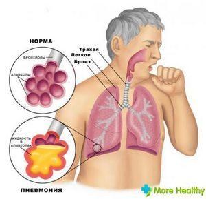 Гипостатическая пневмония у лежачих больных: симптомы и лечение