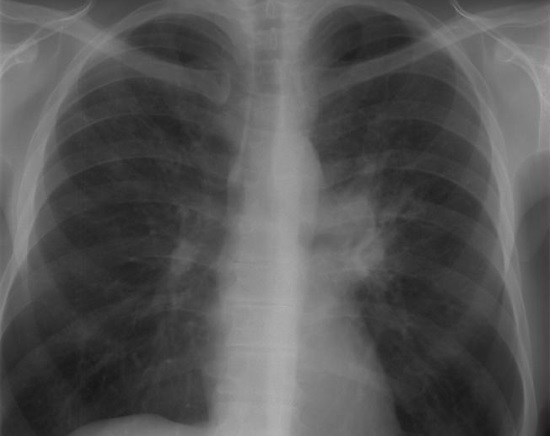 Туберкулез на рентгене: как выглядит снимок легких при туберкулезе