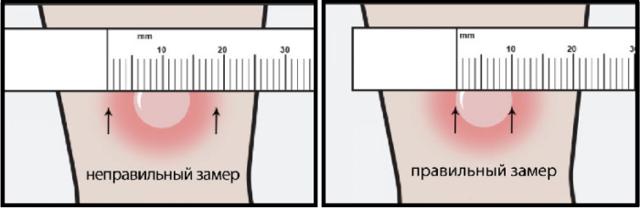 Норма Манту в 2 года - сколько мм должно быть