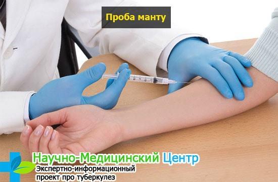 До какого возраста делают Манту в России