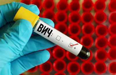 Туберкулез и ВИЧ инфекция: сколько живут с этими заболеваниями