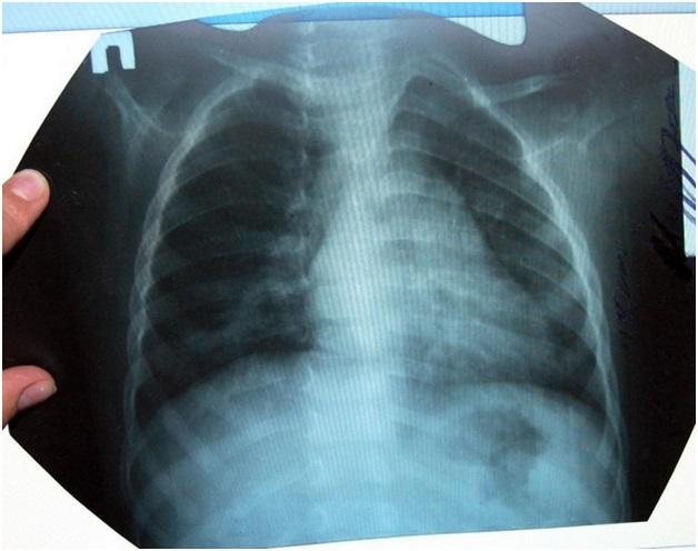 Может ли пневмония перейти в туберкулез и как отличить пневмонию от туберкулеза