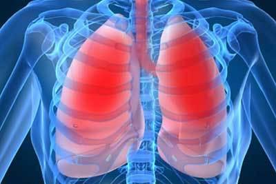 Как лечить пневмонию в домашних условиях у взрослых