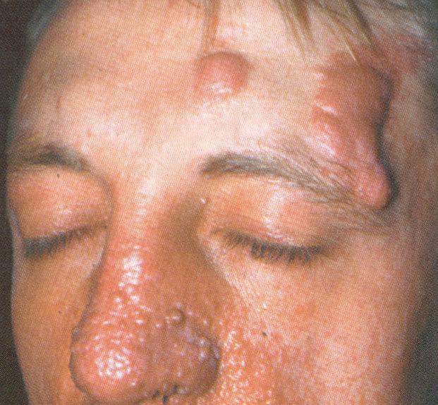 Туберозный склероз у детей - симптомы