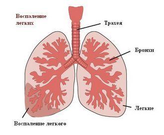 Пневмония или воспаление легких: причины развития и симптомы