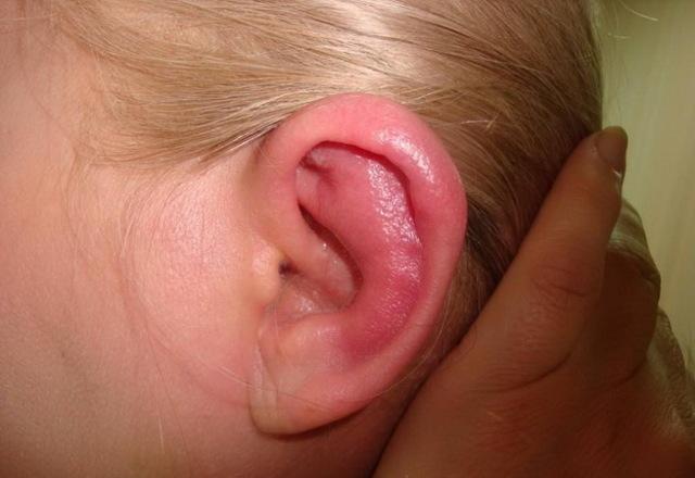 Причины воспаления мочки уха и лечение