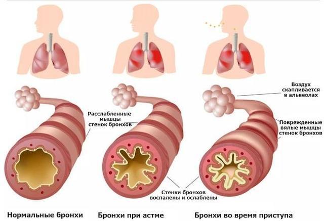 Бронхиальная астма: классификация и особенности диагностики