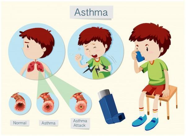 Профилактика бронхиальной астмы: профилактические меры