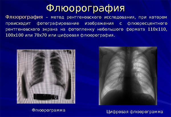 Тест на палочку Коха и анализы при туберкулезе легких у взрослых
