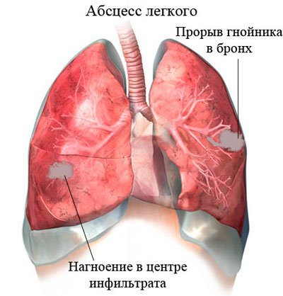 Полисегментарная пневмония у взрослых: симптоматика и лечение