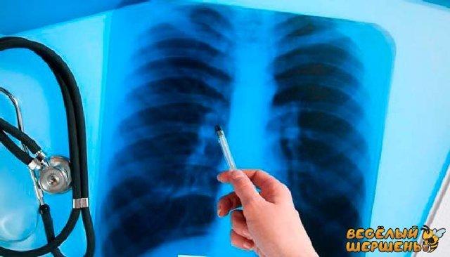 Прополис от туберкулеза: рецепты приготовления и как принимать