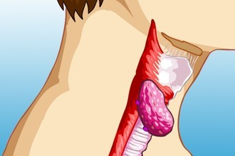 Туберкулез гортани, туберкулезный тонзиллит, горловая чахотка - симптомы туберкулеза горла