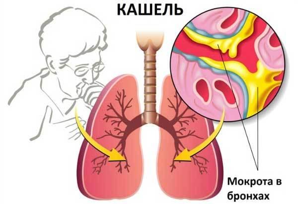 Мокрота при пневмонии: особенности анализа выделений и лечение